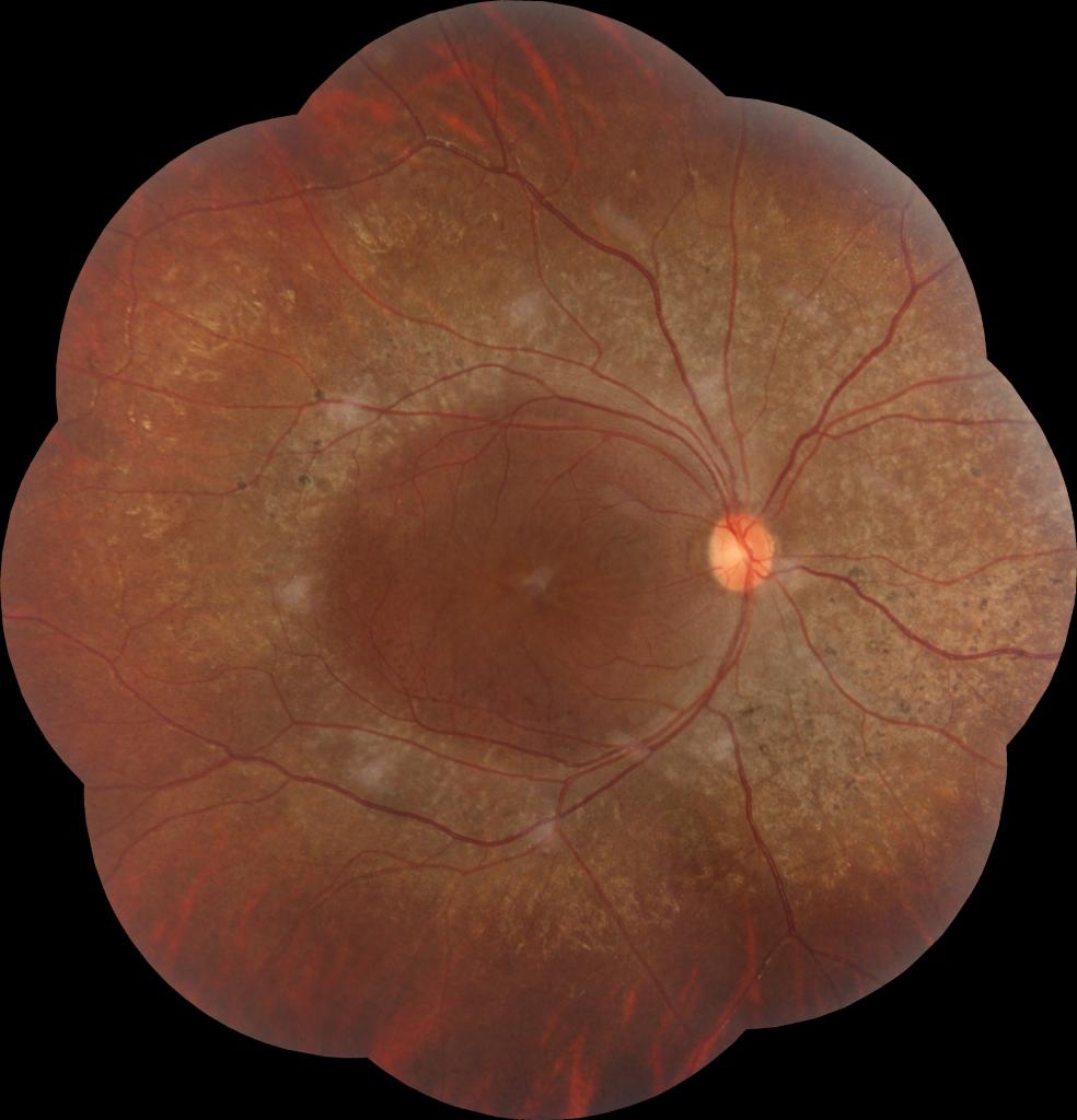 Fundus montage image of retinitis pigmentosa