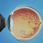 Laser PRP for diabetic retinopathy
