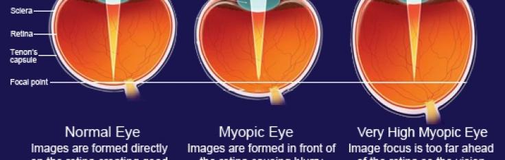 a push-up tiltott myopia)